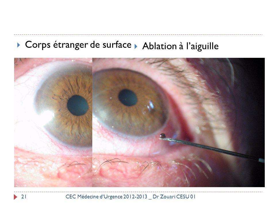  Corps étranger de surface  Ablation à l'aiguille 21CEC Médecine d'Urgence 2012-2013 _ Dr Zouari CESU 01