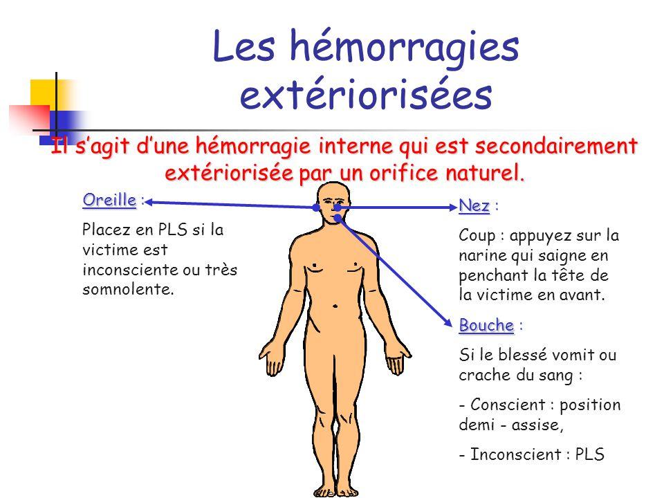 Les hémorragies extériorisées Il s'agit d'une hémorragie interne qui est secondairement extériorisée par un orifice naturel. Oreille Oreille : Placez