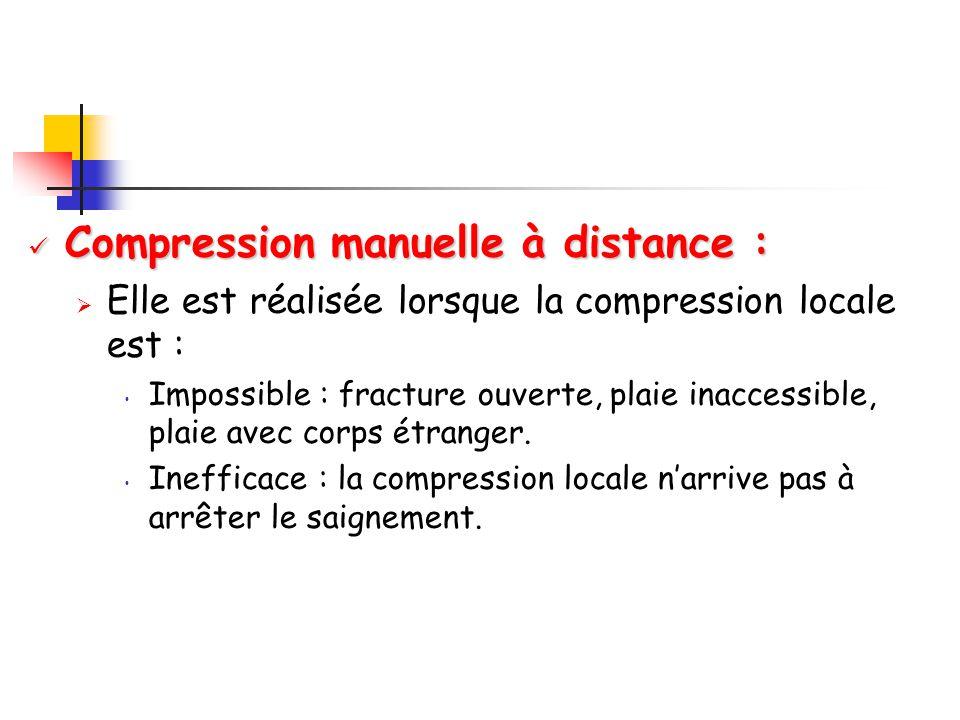 Compression manuelle à distance : Compression manuelle à distance :  Elle est réalisée lorsque la compression locale est : Impossible : fracture ouverte, plaie inaccessible, plaie avec corps étranger.