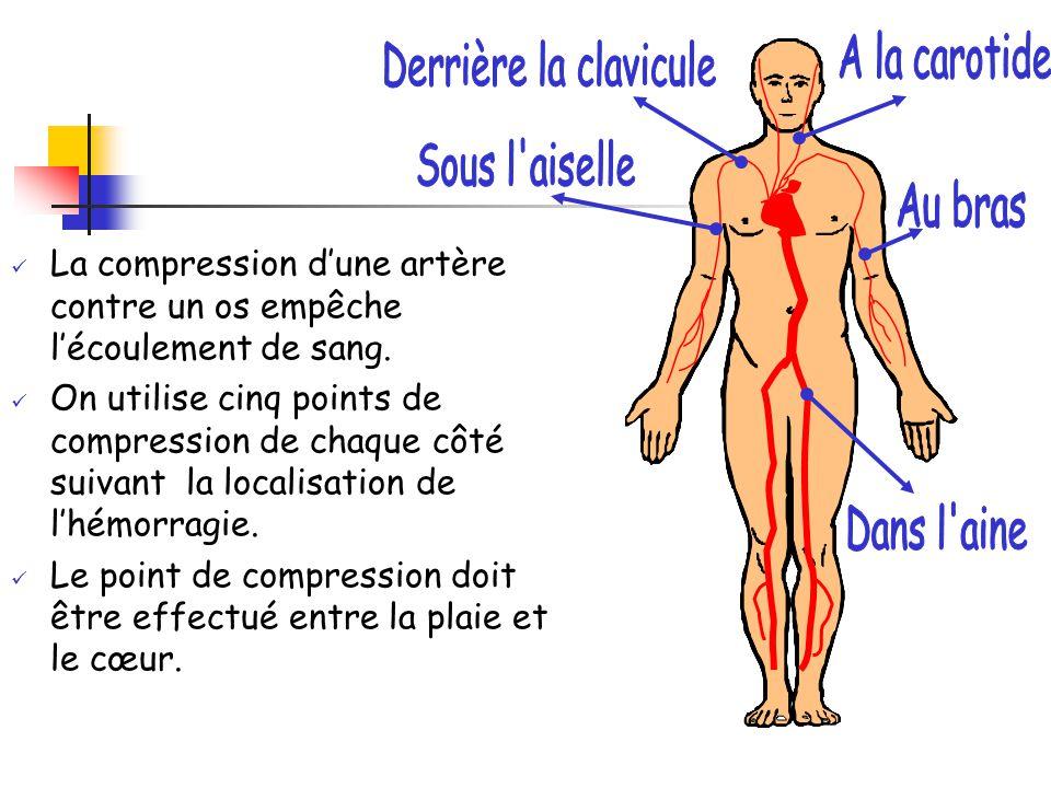 La compression d'une artère contre un os empêche l'écoulement de sang. On utilise cinq points de compression de chaque côté suivant la localisation de