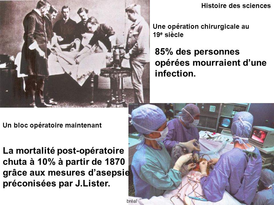 bréal Histoire des sciences Une opération chirurgicale au 19 e siècle Un bloc opératoire maintenant 85% des personnes opérées mourraient d'une infection.