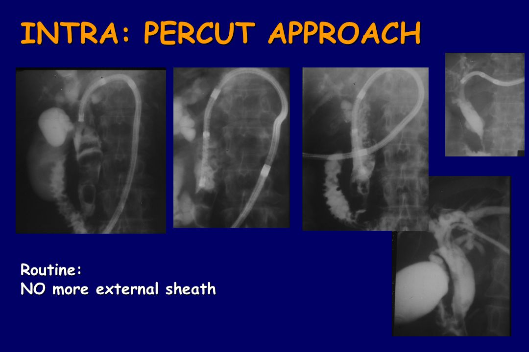 Routine: NO more external sheath INTRA: PERCUT APPROACH