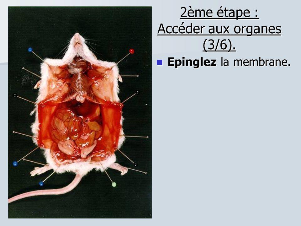 2ème étape : Accéder aux organes (3/6). Epinglez la membrane. Epinglez la membrane.