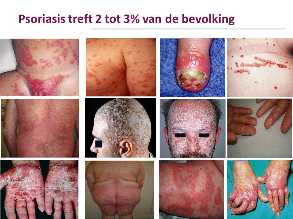 Psoriasis treft 2 tot 3% van de bevolking