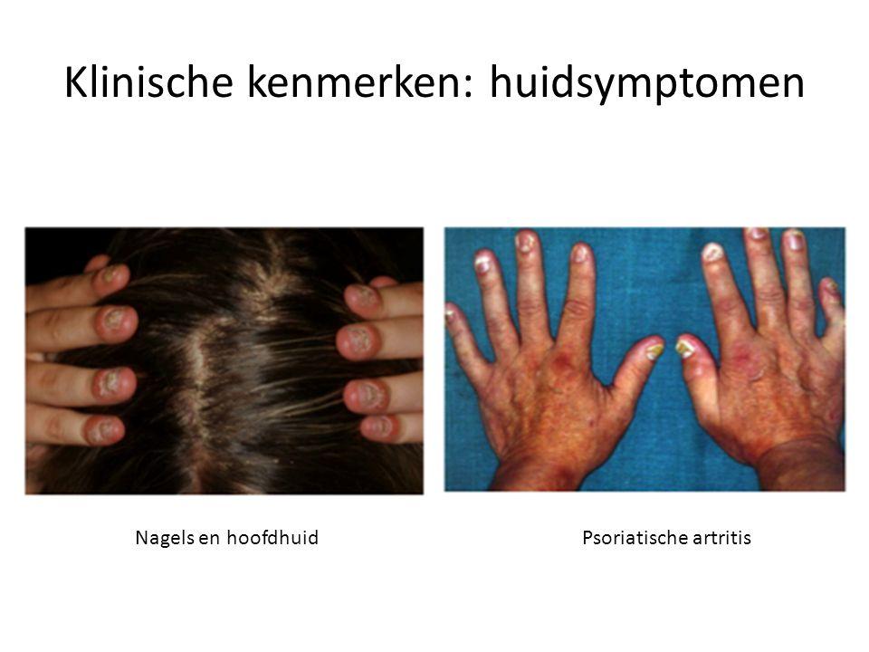Klinische kenmerken: huidsymptomen Nagels en hoofdhuidPsoriatische artritis