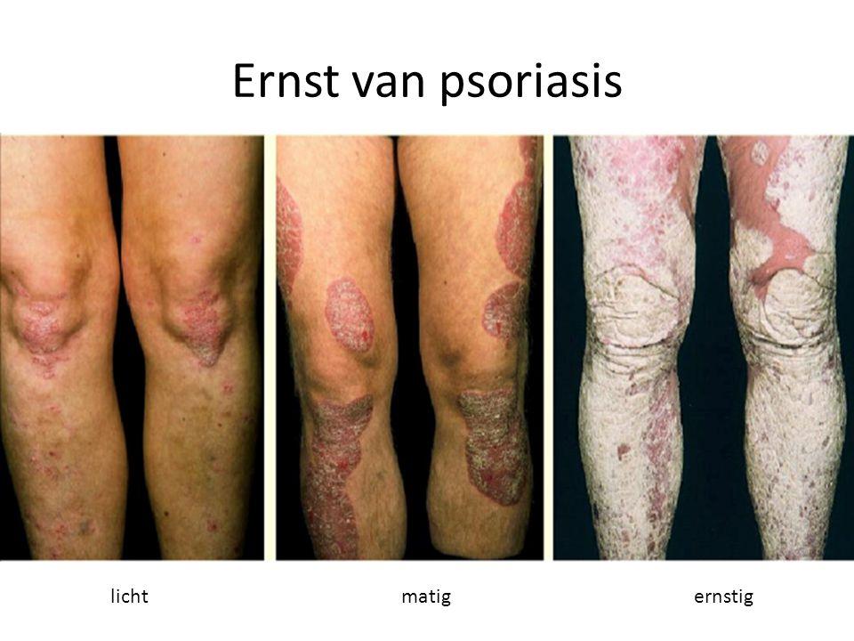 Ernst van psoriasis lichtmatigernstig