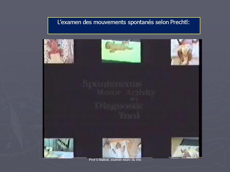 Prof O Battisti, examen neuro du nné L'examen des mouvements spontanés selon Prechtl: