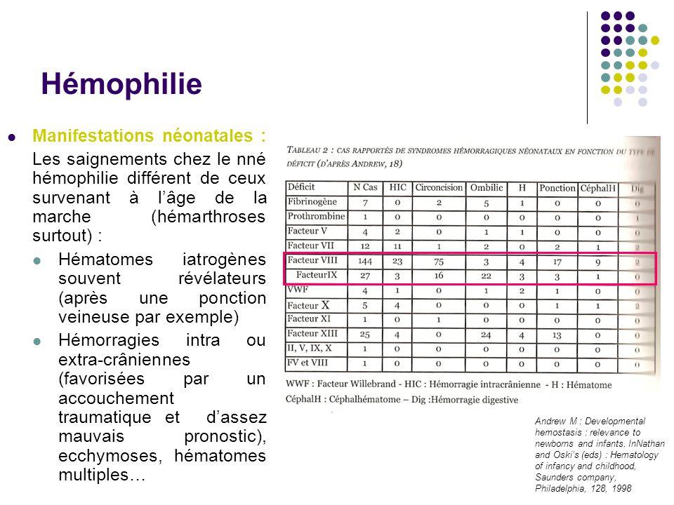 Hémophilie Manifestations néonatales : Les saignements chez le nné hémophilie différent de ceux survenant à l'âge de la marche (hémarthroses surtout)