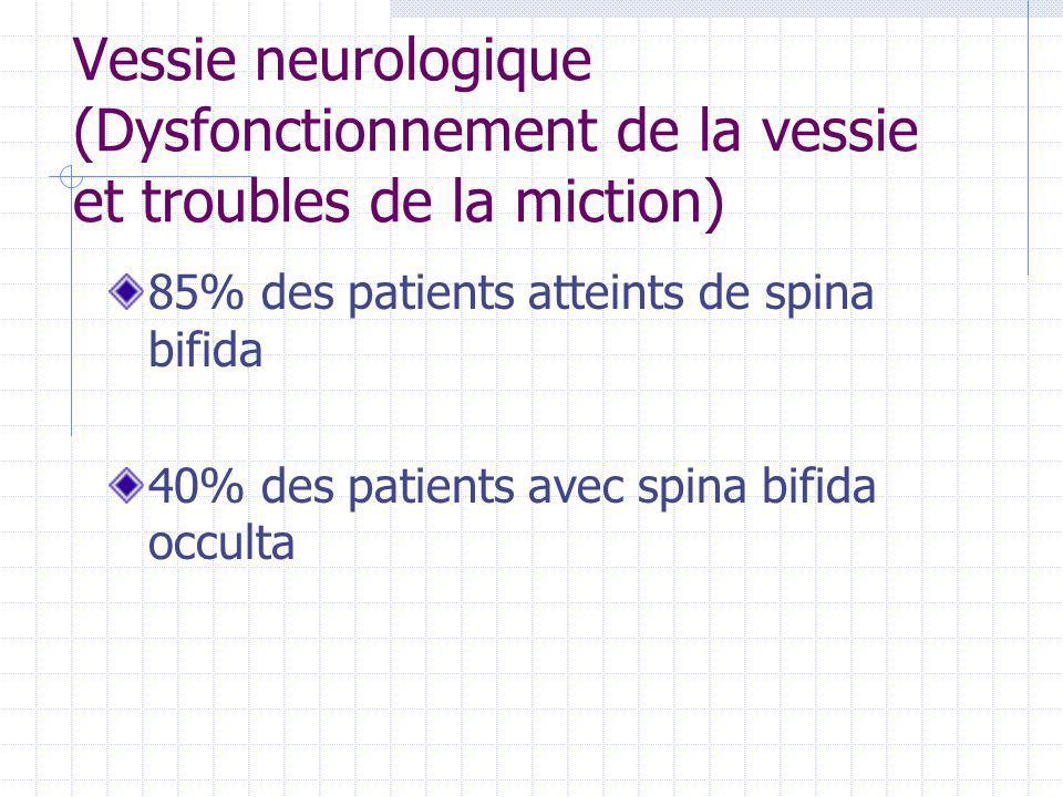 Vessie neurologique (Dysfonctionnement de la vessie et troubles de la miction) 85% des patients atteints de spina bifida 40% des patients avec spina b