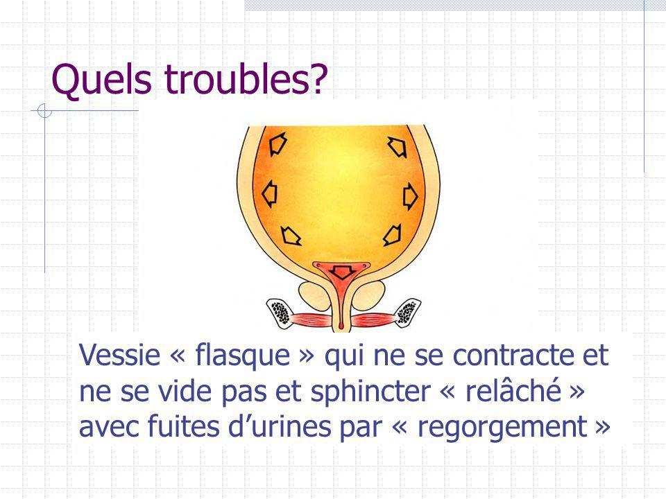 Quels troubles? Vessie « flasque » qui ne se contracte et ne se vide pas et sphincter « relâché » avec fuites d'urines par « regorgement »