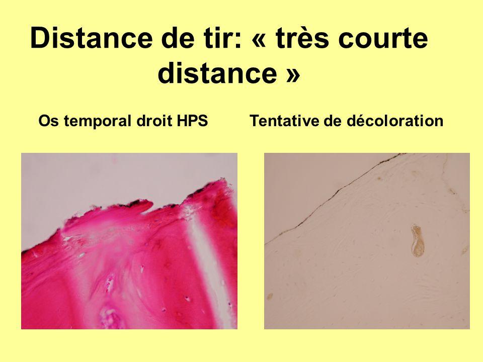 Distance de tir: « très courte distance » Os temporal droit HPSTentative de décoloration