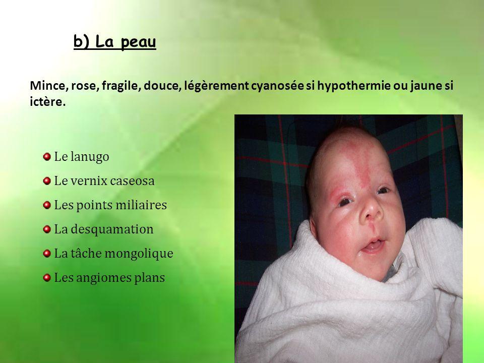 I.Le nouveau-né et son adaptation à la vie extra utérine 1) Caractères physiques normaux à la naissance a) Les mensurations Poids: 3 à 3.5 kg Taille:
