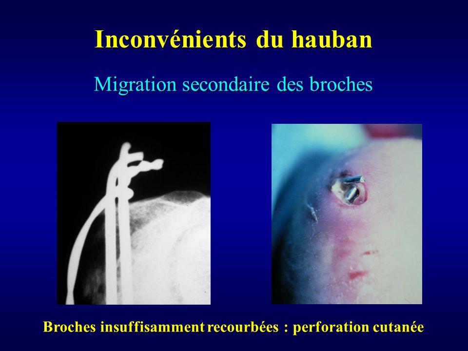 Migration secondaire des broches Inconvénients du hauban Broches insuffisamment recourbées : perforation cutanée