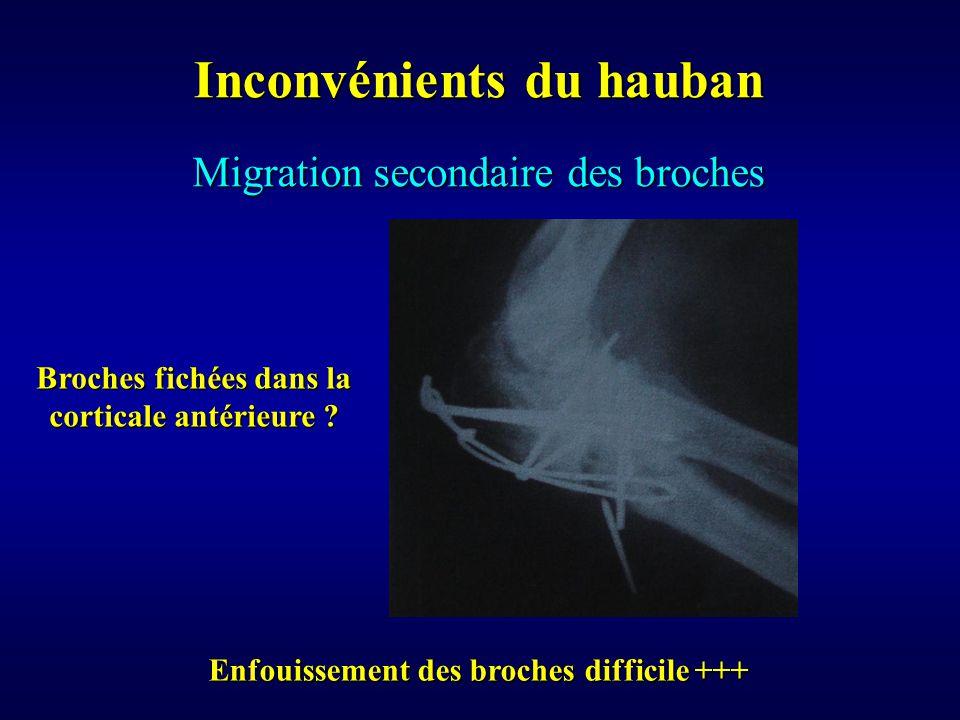 Migration secondaire des broches Inconvénients du hauban Enfouissement des broches difficile +++ Broches fichées dans la corticale antérieure ?
