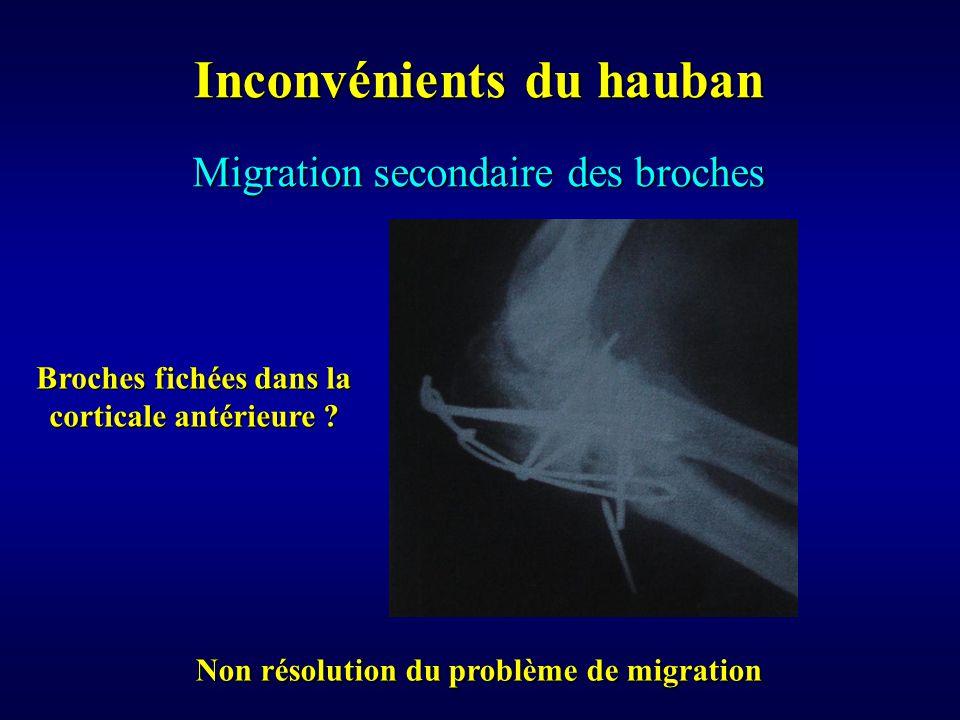 Migration secondaire des broches Inconvénients du hauban Non résolution du problème de migration Broches fichées dans la corticale antérieure ?