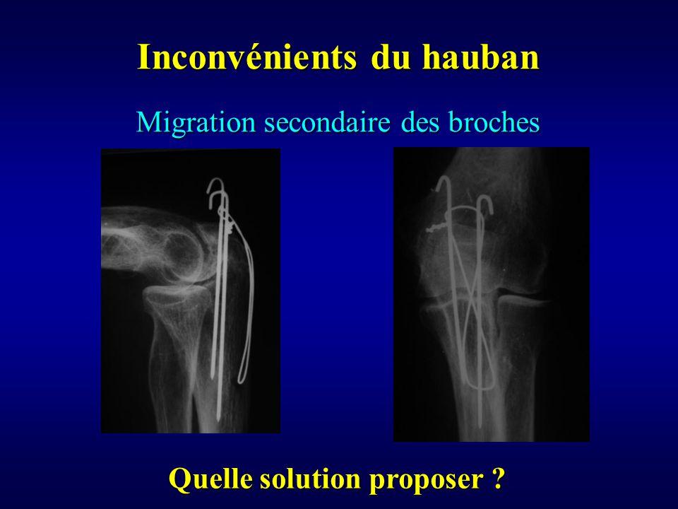 Migration secondaire des broches Inconvénients du hauban Quelle solution proposer ?