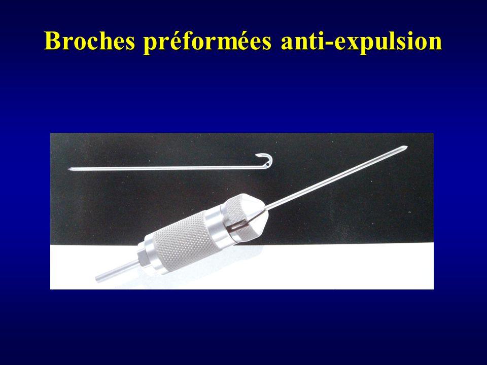 Broches préformées anti-expulsion