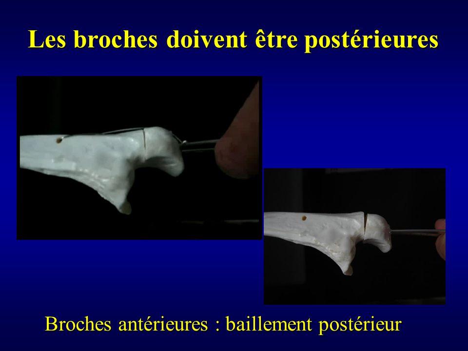 Broches antérieures : baillement postérieur