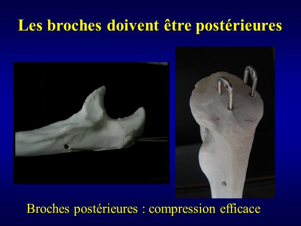 Les broches doivent être postérieures Broches postérieures : compression efficace