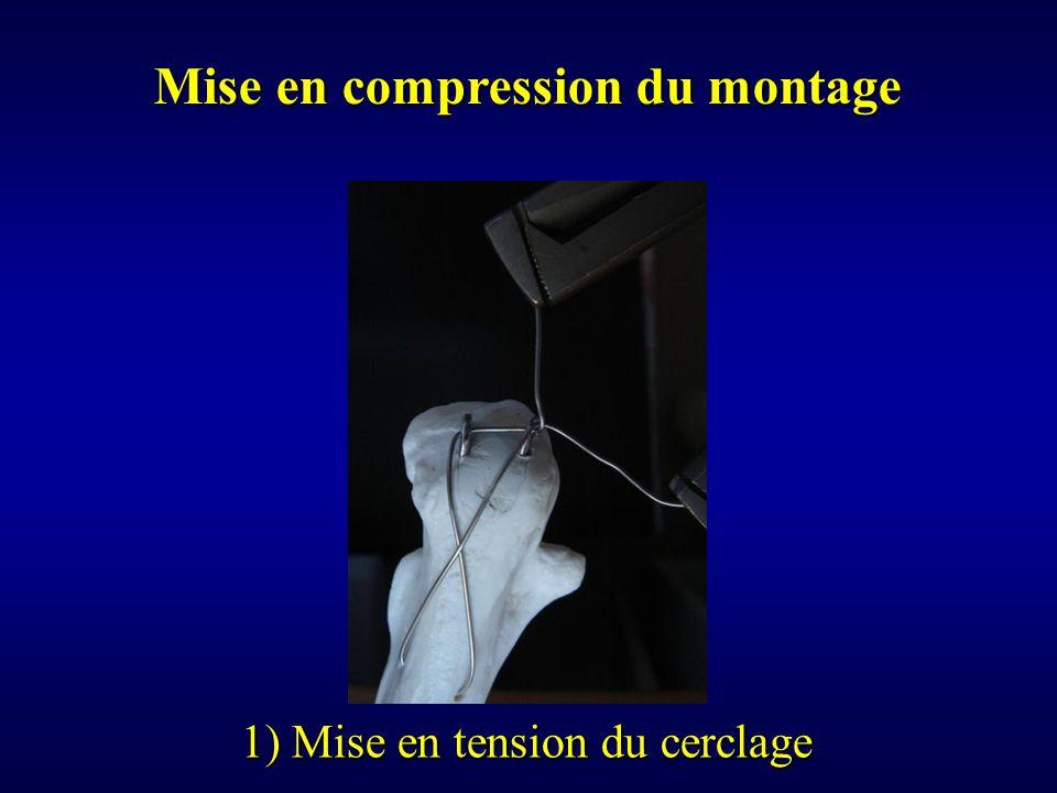 Mise en compression du montage 1) Mise en tension du cerclage