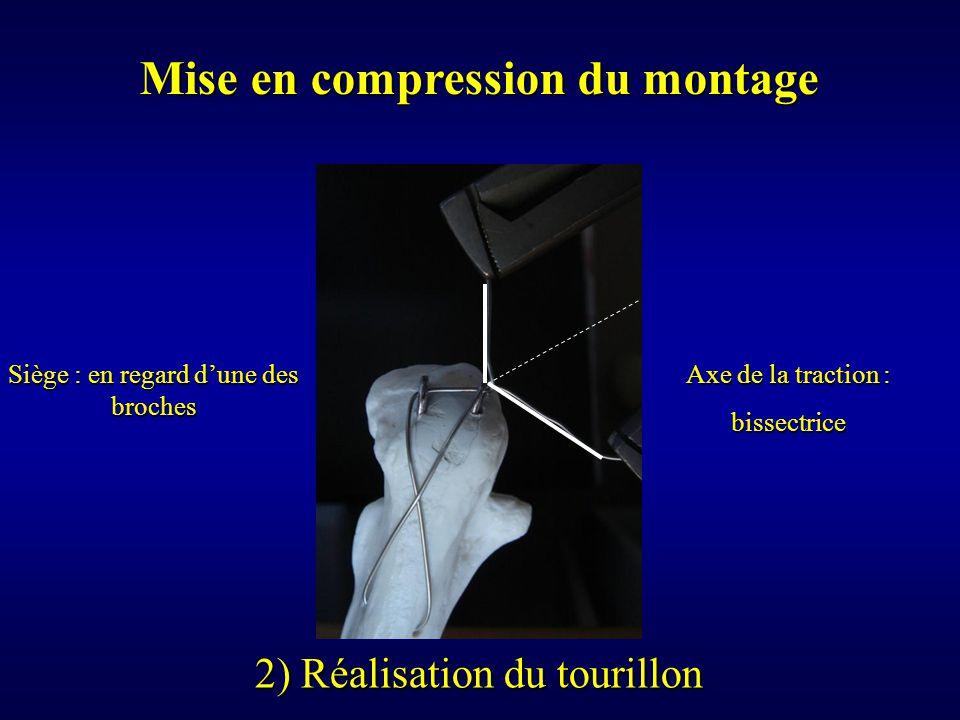 Mise en compression du montage 2) Réalisation du tourillon Siège : en regard d'une des broches Axe de la traction : bissectrice