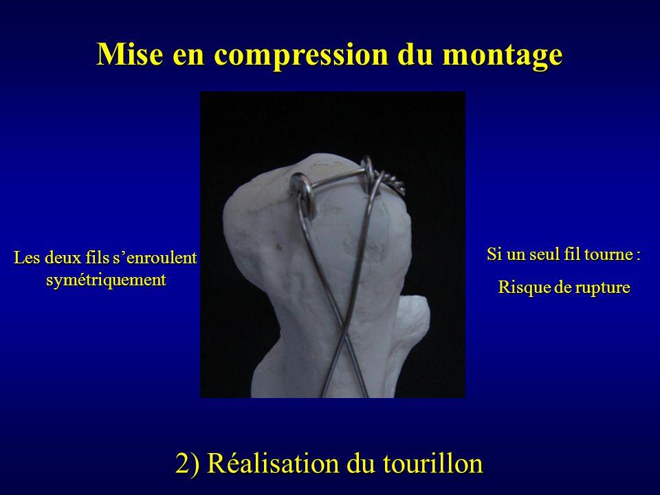 Mise en compression du montage 2) Réalisation du tourillon Les deux fils s'enroulent symétriquement Si un seul fil tourne : Risque de rupture