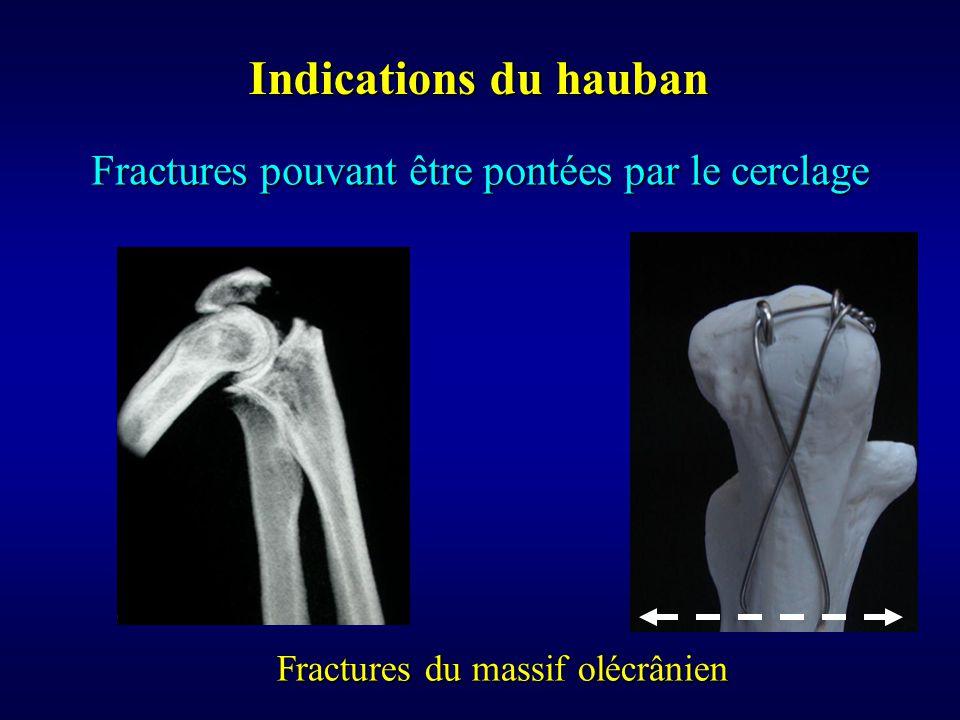 Indications du hauban Fractures pouvant être pontées par le cerclage Fractures du massif olécrânien