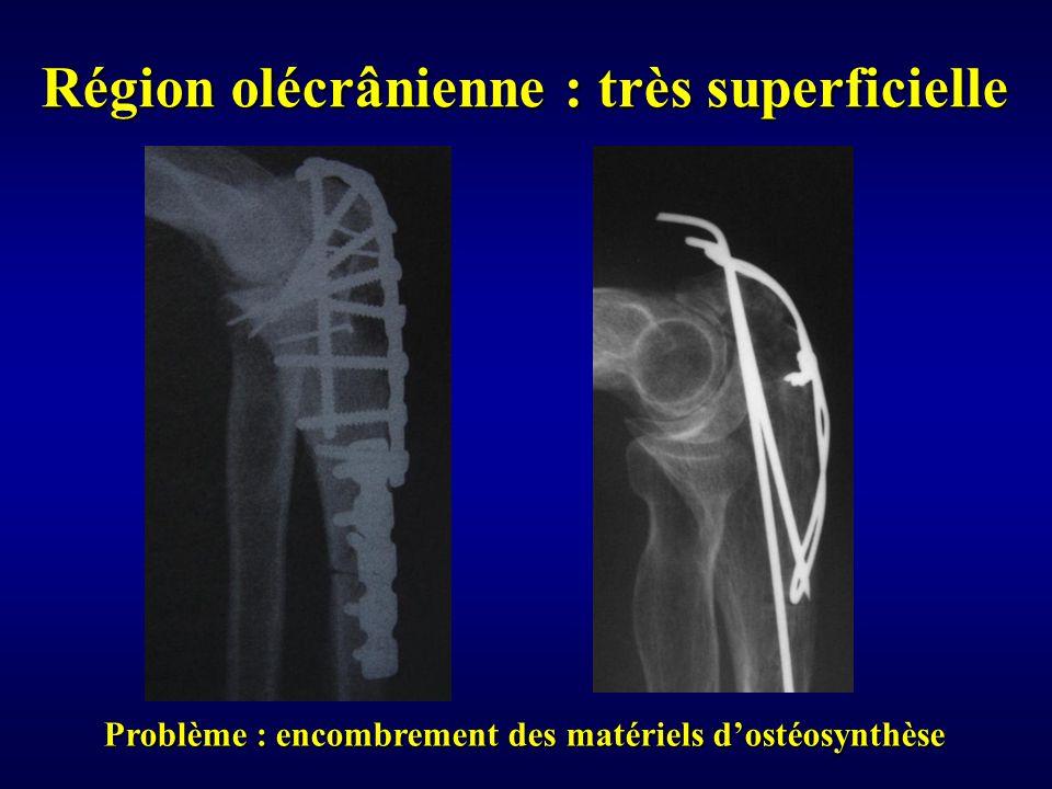 Problème : encombrement des matériels d'ostéosynthèse