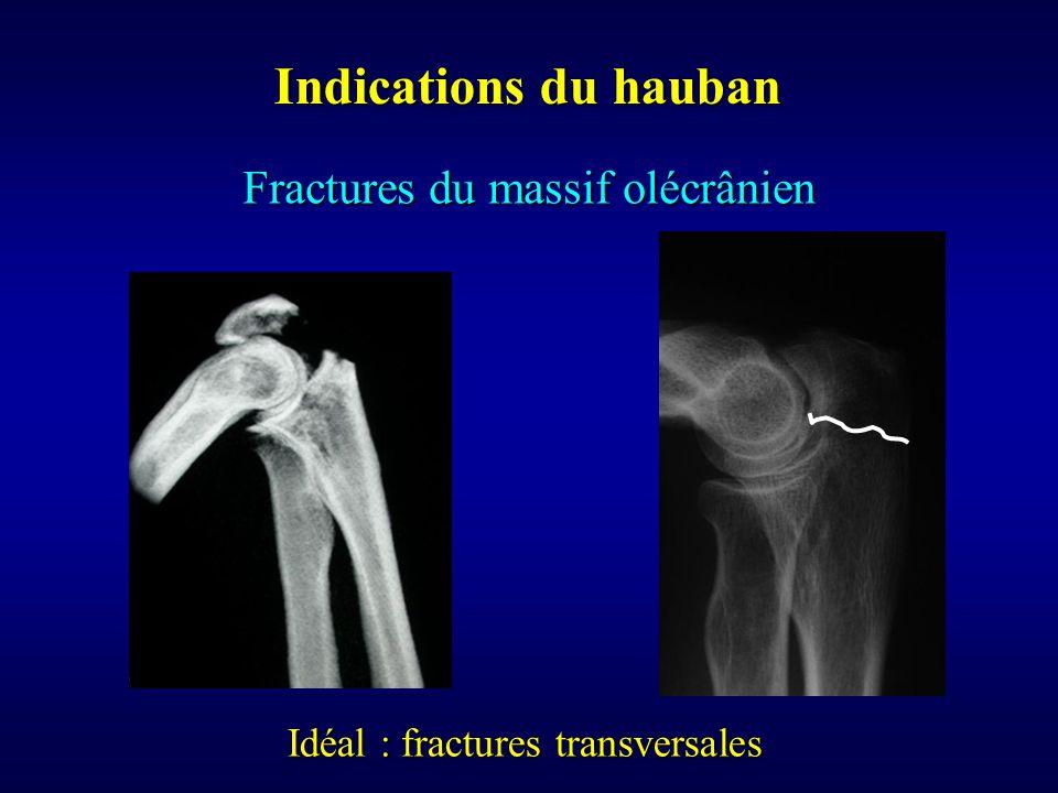 Indications du hauban Fractures du massif olécrânien Idéal : fractures transversales