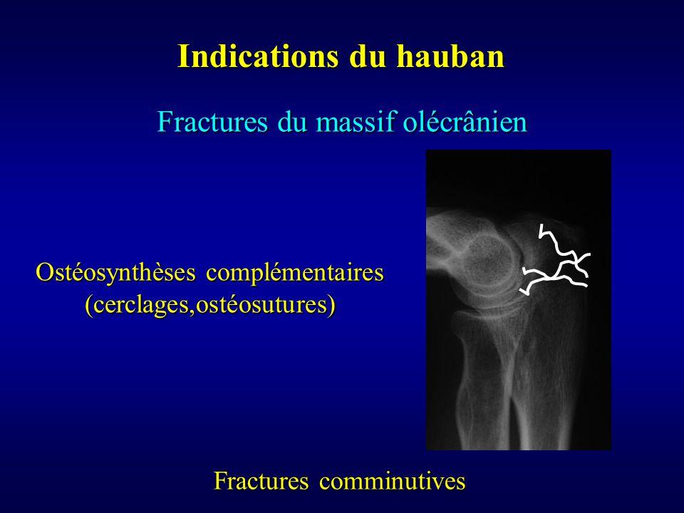 Indications du hauban Fractures du massif olécrânien Fractures comminutives Ostéosynthèses complémentaires (cerclages,ostéosutures)