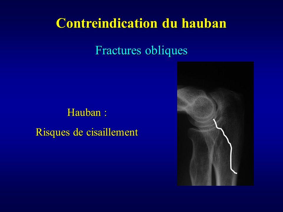 Contreindication du hauban Fractures obliques Hauban : Risques de cisaillement