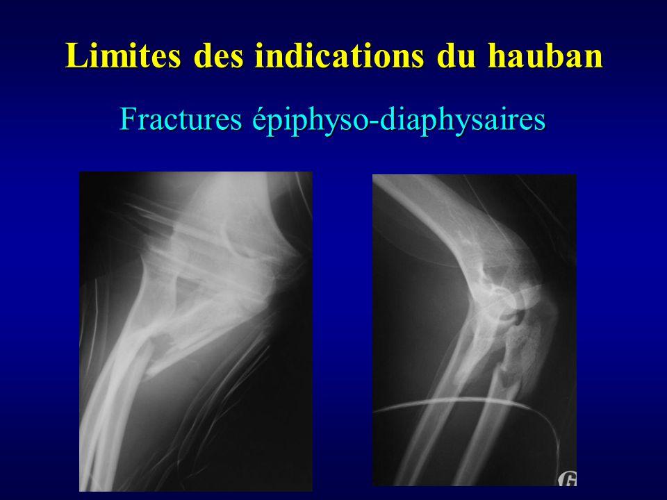 Fractures épiphyso-diaphysaires Limites des indications du hauban