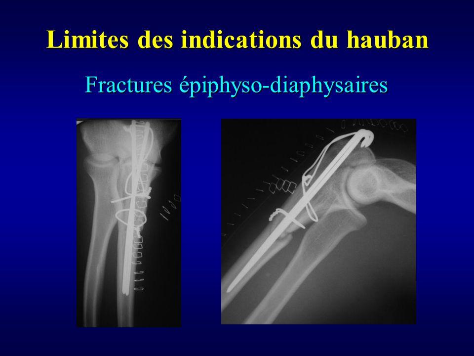 Fractures épiphyso-diaphysaires
