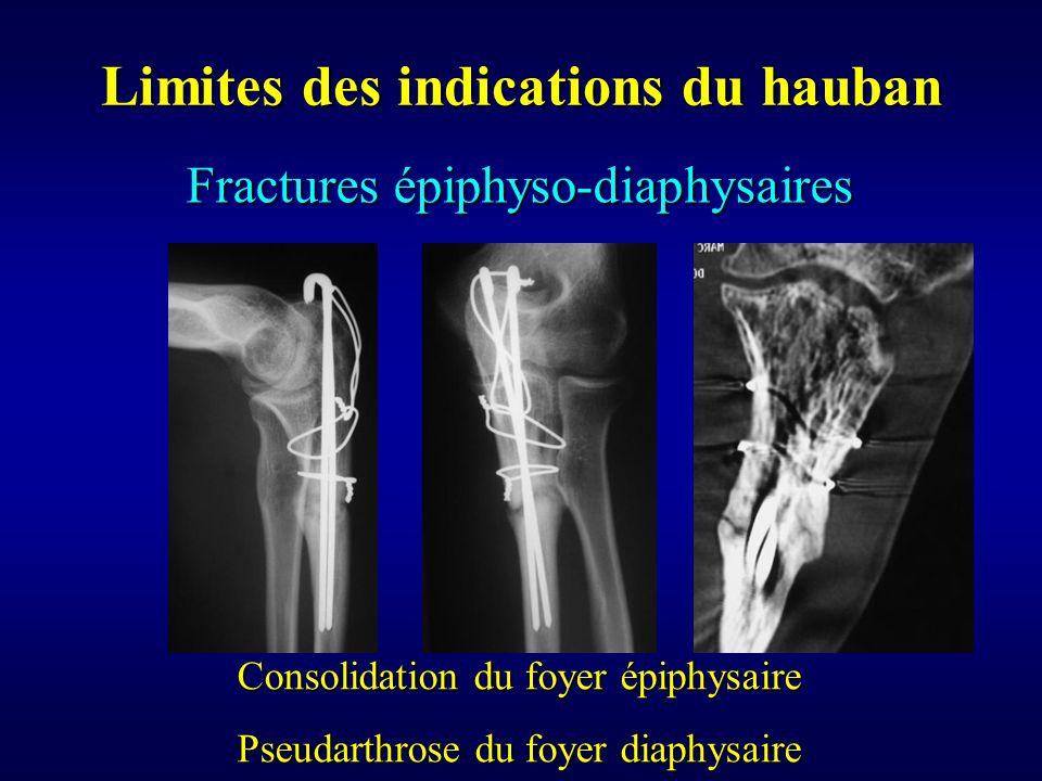 Limites des indications du hauban Consolidation du foyer épiphysaire Pseudarthrose du foyer diaphysaire