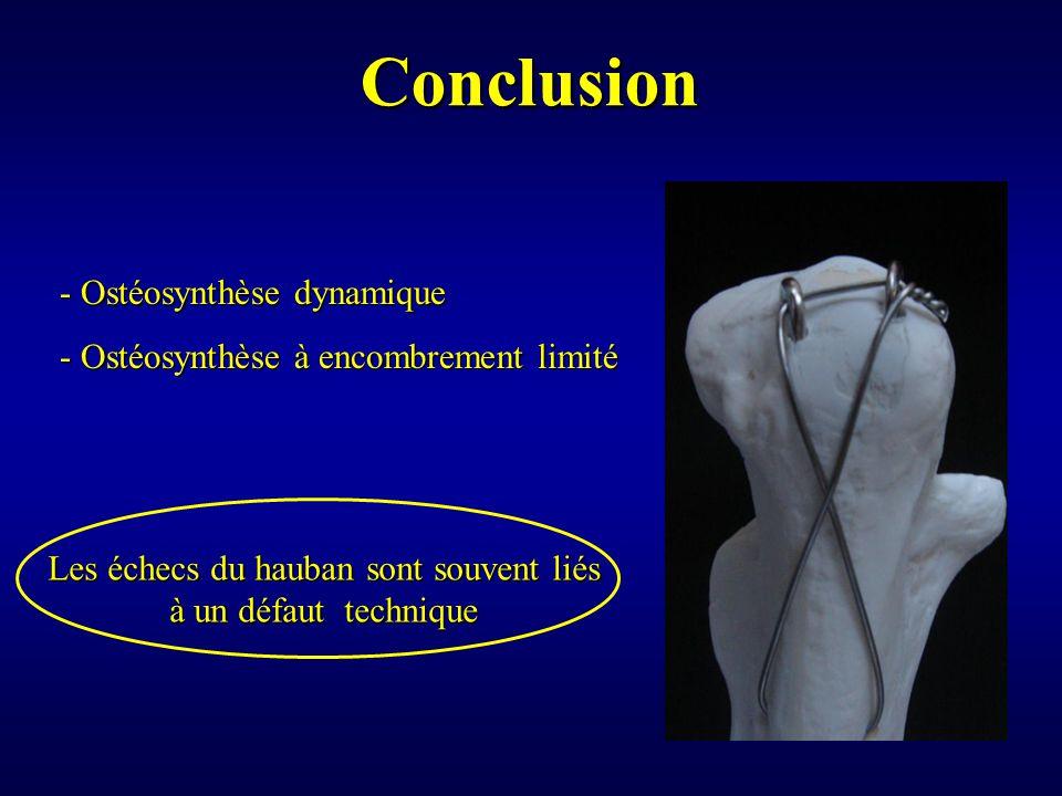 Conclusion Les échecs du hauban sont souvent liés à un défaut technique - Ostéosynthèse dynamique - Ostéosynthèse à encombrement limité