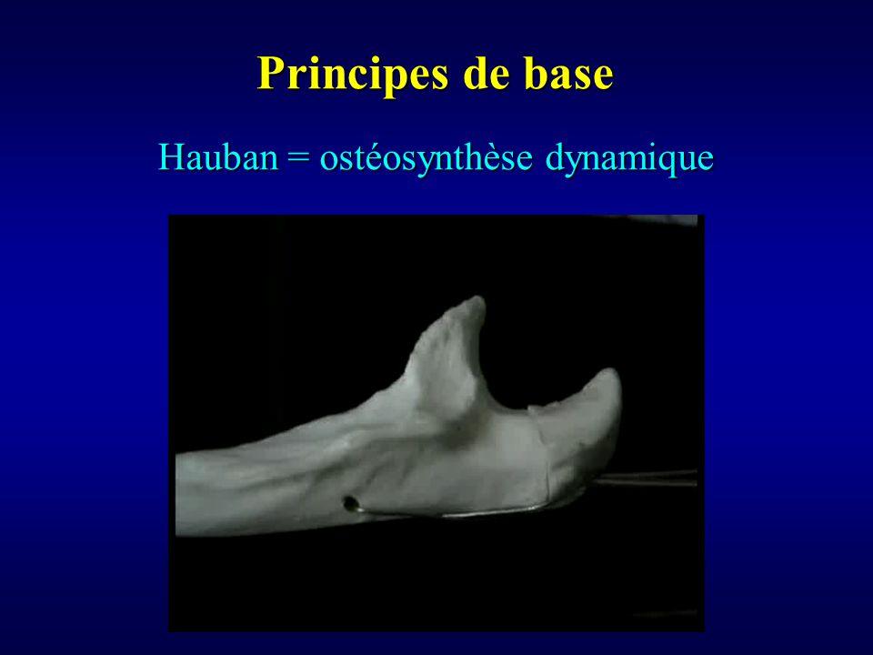 Hauban = ostéosynthèse dynamique Principes de base