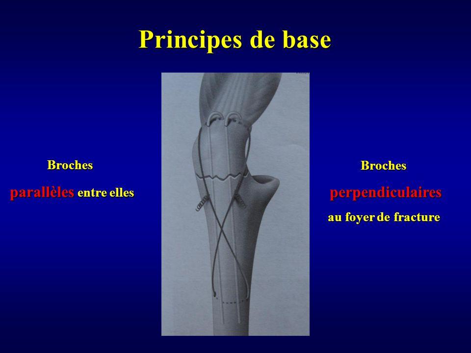 Principes de base Broches parallèles entre elles parallèles entre elles Broches perpendiculaires perpendiculaires au foyer de fracture