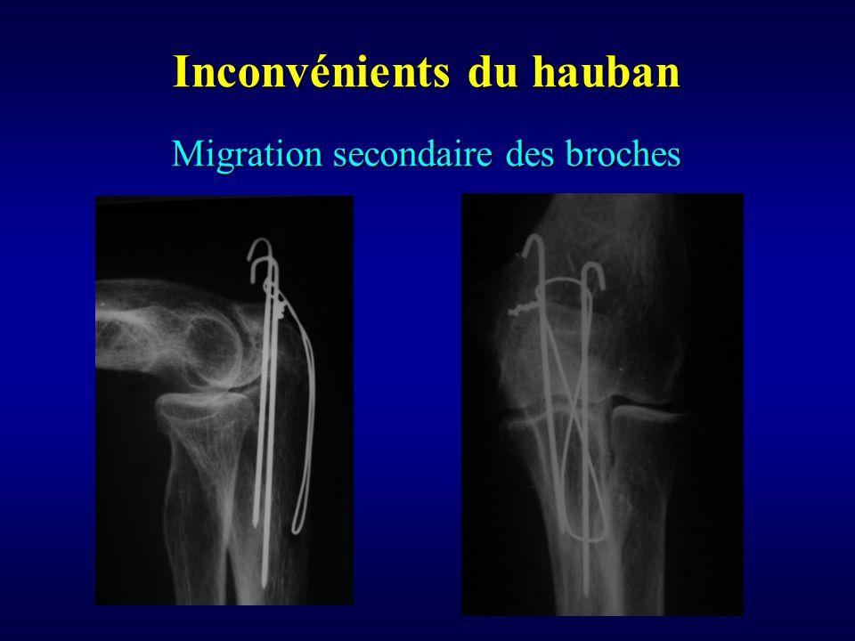 Migration secondaire des broches Inconvénients du hauban