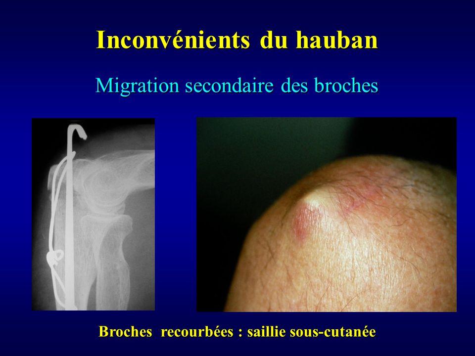 Migration secondaire des broches Inconvénients du hauban Broches recourbées : saillie sous-cutanée