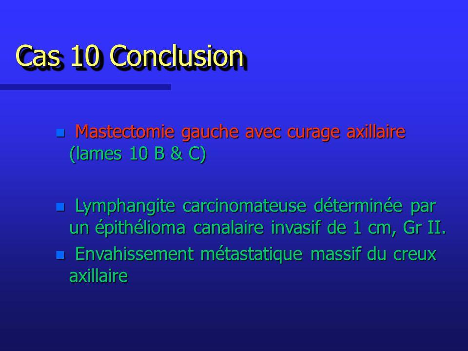 n Mastectomie gauche avec curage axillaire (lames 10 B & C) n Lymphangite carcinomateuse déterminée par un épithélioma canalaire invasif de 1 cm, Gr II.