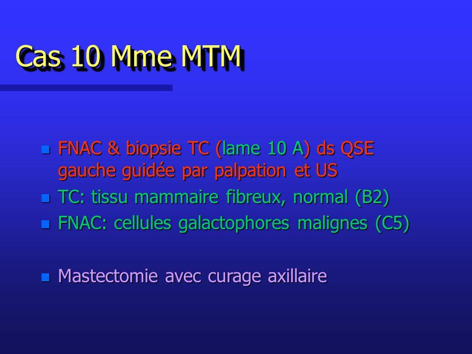 Cas 10 Mme MTM n FNAC & biopsie TC (lame 10 A) ds QSE gauche guidée par palpation et US n TC: tissu mammaire fibreux, normal (B2) n FNAC: cellules galactophores malignes (C5) n Mastectomie avec curage axillaire