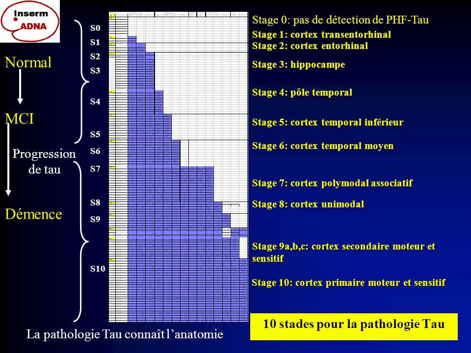Relation entre agrégats de tau et A  dans la maladie d'Alzheimer sporadique tau et A  x  augmentent en parallèle dans la cinétique qui va du témoin parfait au stade le plus avancé de la maladie d'Alzheimer Les 10 stades de tau A  x-42 (gradient du jaune (0 A  au gris foncé (1,5 mg/g de tissu)(4 colonnes pour le temporal, frontal, pariétal et occipital) A  x-40 170 sujets classés selon la progression de la pathologie tau: Quelle est la distribution des dépots de Abéta par rapport à Tau.