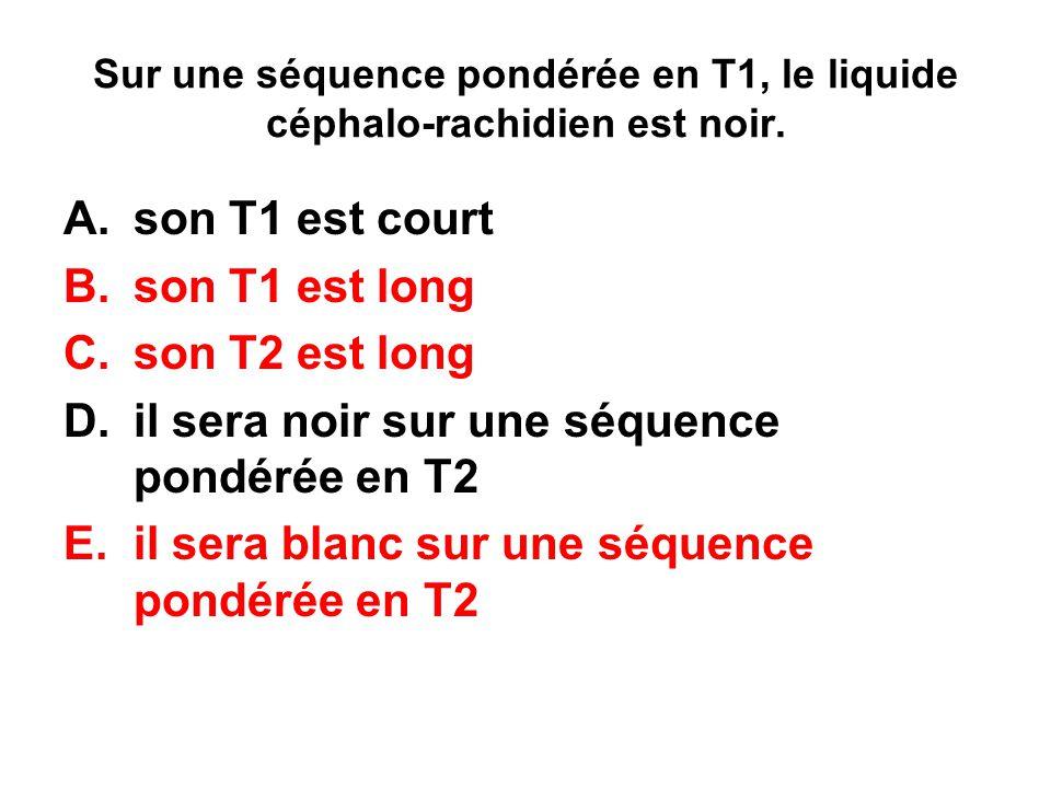 Sur une séquence pondérée en T1, le liquide céphalo-rachidien est noir. A.son T1 est court B.son T1 est long C.son T2 est long D.il sera noir sur une