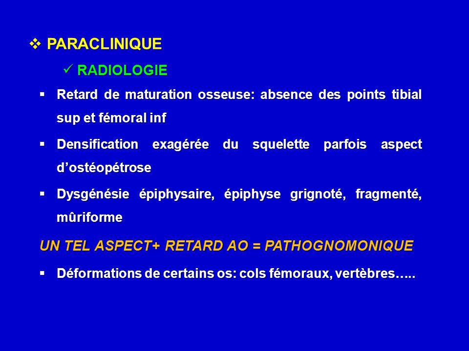  PARACLINIQUE RADIOLOGIE RADIOLOGIE  Retard de maturation osseuse: absence des points tibial sup et fémoral inf  Densification exagérée du squelett