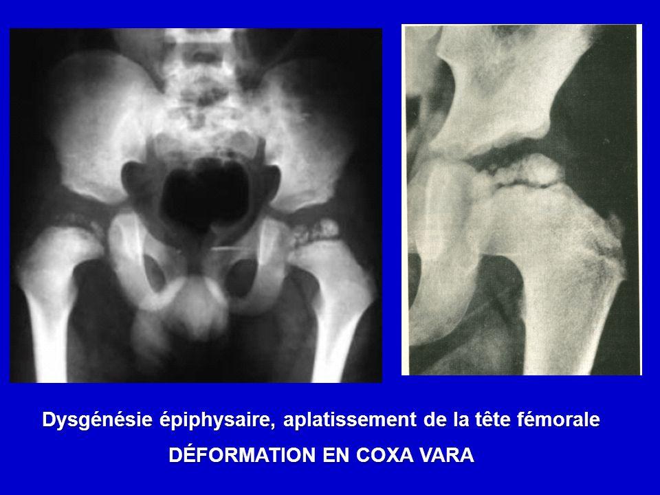 Dysgénésie épiphysaire, aplatissement de la tête fémorale DÉFORMATION EN COXA VARA