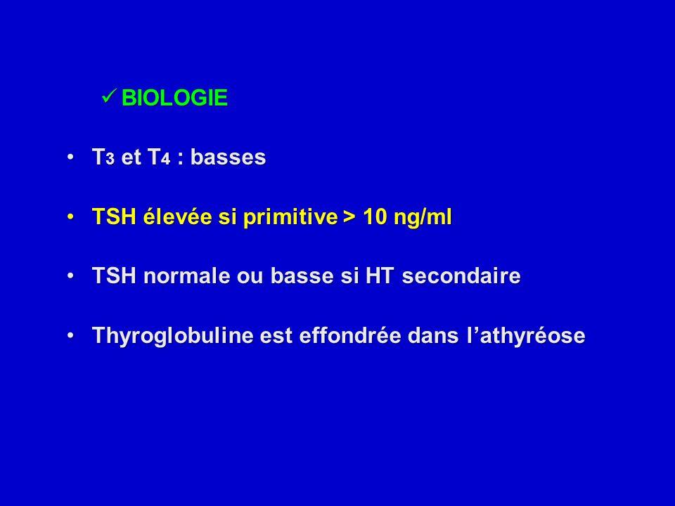 BIOLOGIE BIOLOGIE T 3 et T 4 : bassesT 3 et T 4 : basses TSH élevée si primitive > 10 ng/mlTSH élevée si primitive > 10 ng/ml TSH normale ou basse si
