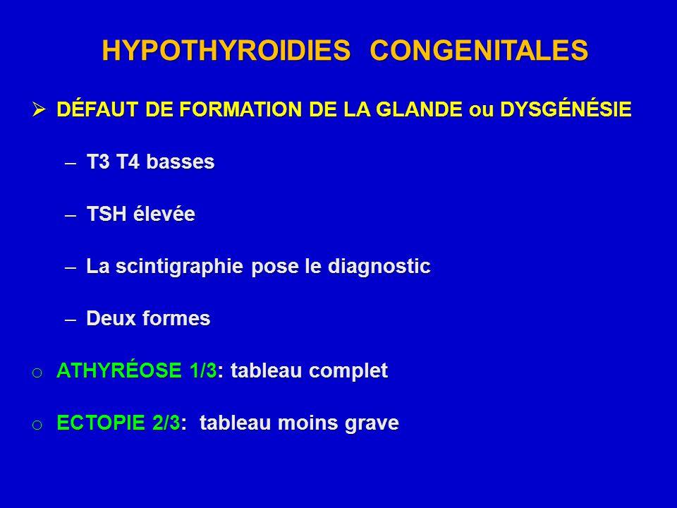 HYPOTHYROIDIES CONGENITALES  DÉFAUT DE FORMATION DE LA GLANDE ou DYSGÉNÉSIE –T3 T4 basses –TSH élevée –La scintigraphie pose le diagnostic –Deux form