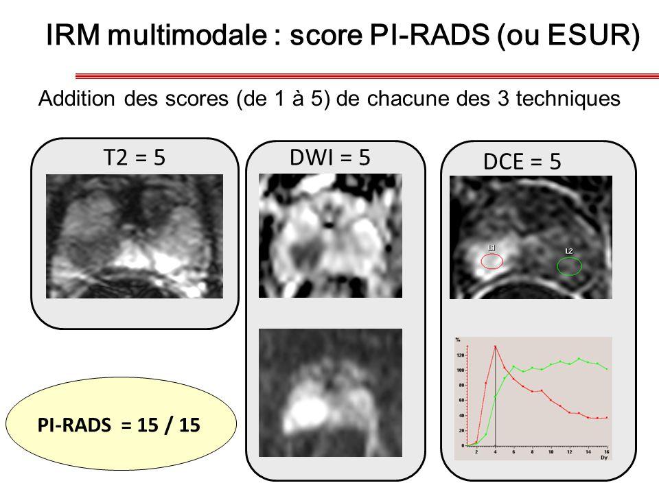 IRM multimodale : score PI-RADS (ou ESUR) DCE = 5 T2 = 5DWI = 5 PI-RADS = 15 / 15 Addition des scores (de 1 à 5) de chacune des 3 techniques
