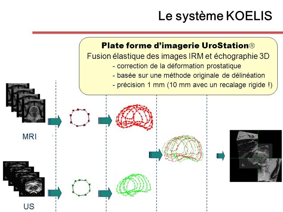 Plate forme d'imagerie UroStation  Fusion élastique des images IRM et échographie 3D - correction de la déformation prostatique - basée sur une métho