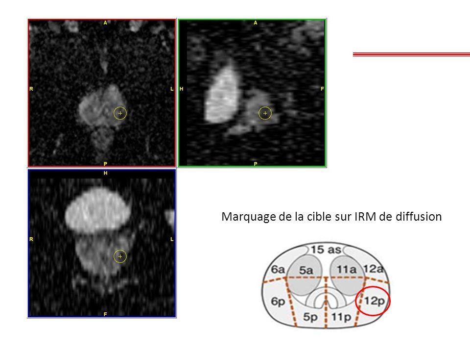 Marquage de la cible sur IRM de diffusion
